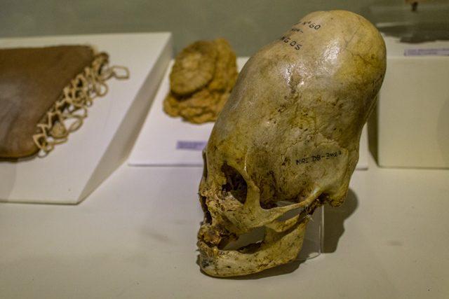 Ica Museo Regional Deformacion Craneal